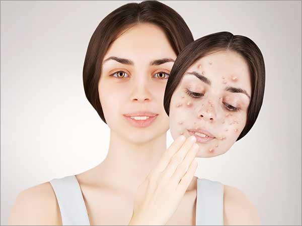 acne treatment in bangalore