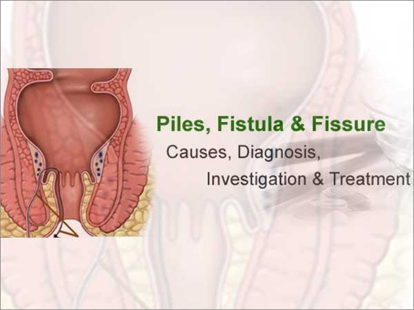 piles, fissure, fistula treatment in bangalore