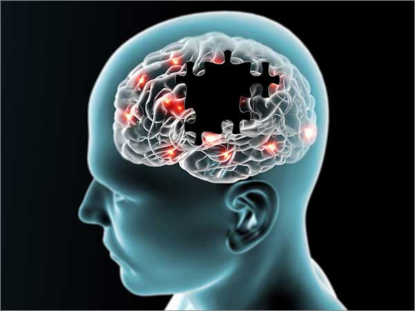 neurological ailments