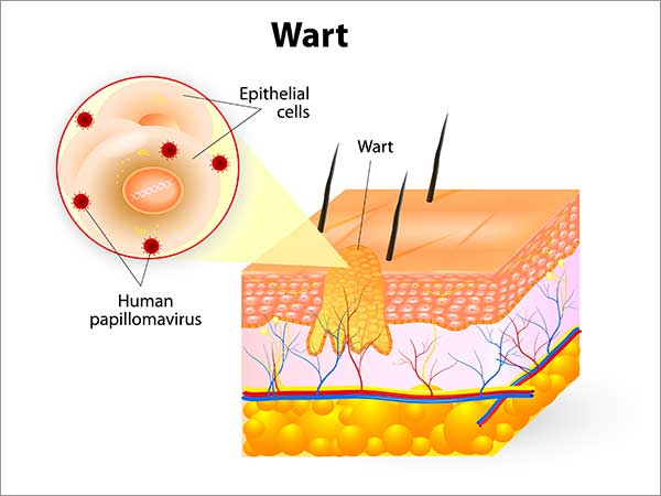 treatment for wart in bangalore